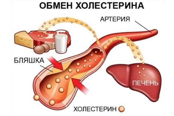 холестерин нарушение обмена веществ или