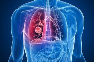 Рак легких - следствие курения