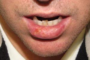 Рак губ при запущенном состоянии лейкоплакии курильщика