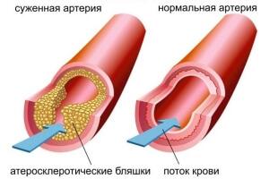 Схема закупоривания сосудов холестерином