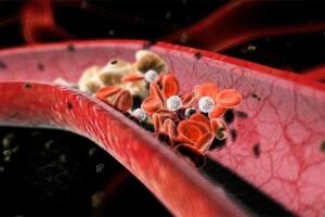 Образование тромбов в сосудах