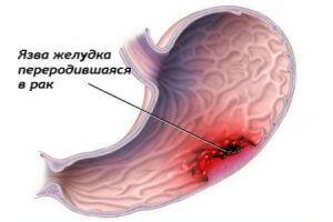 Язва желудка у курильщика