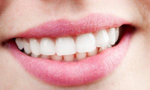 Отбеливание зубов с помощью лимона и пищевой соды