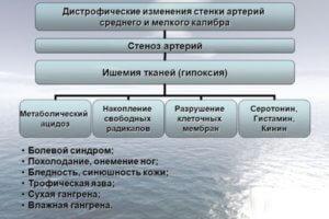 Схема развития облитирующего эндартериита