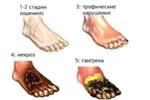 курение ноги болят